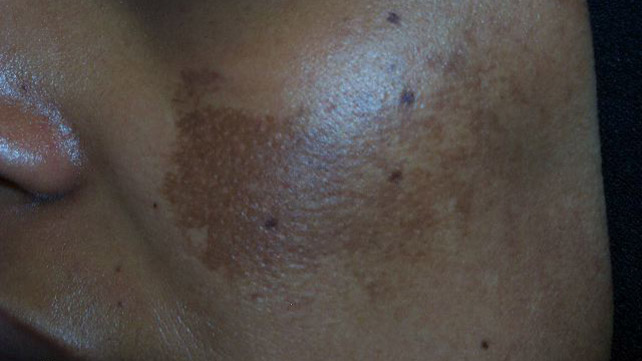Dark Dry Patch Of Skin On Back | Diydry.co
