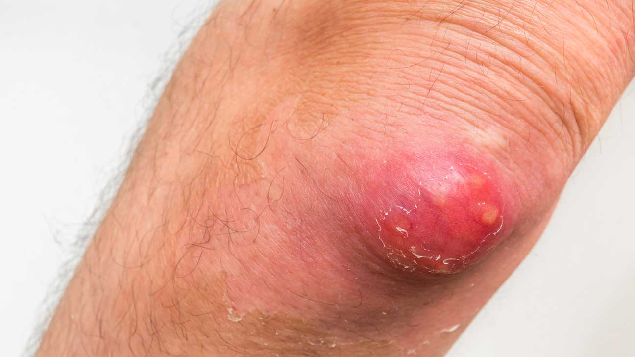 Allergies To Skin - Causes And Symptoms