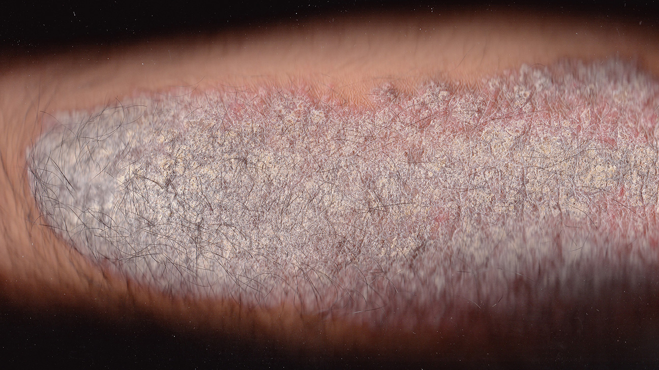 skin condition dry skin