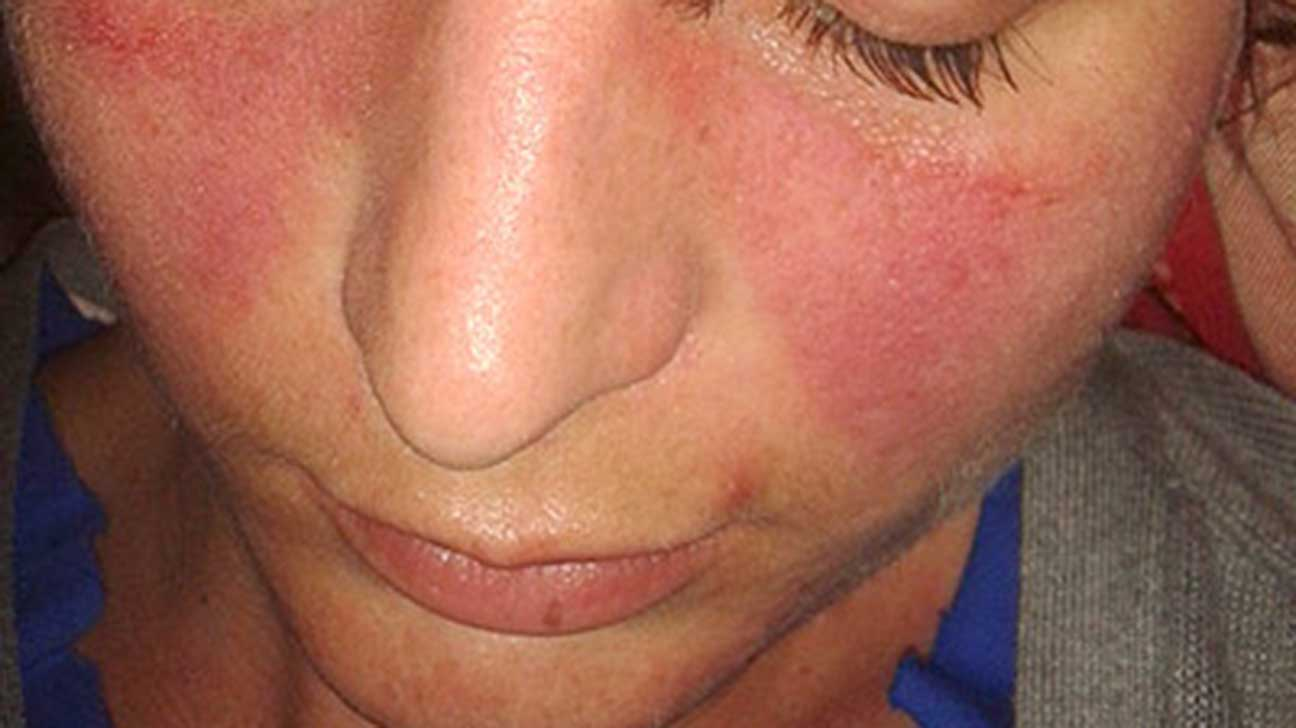 Natural Cure For Lupus Rash
