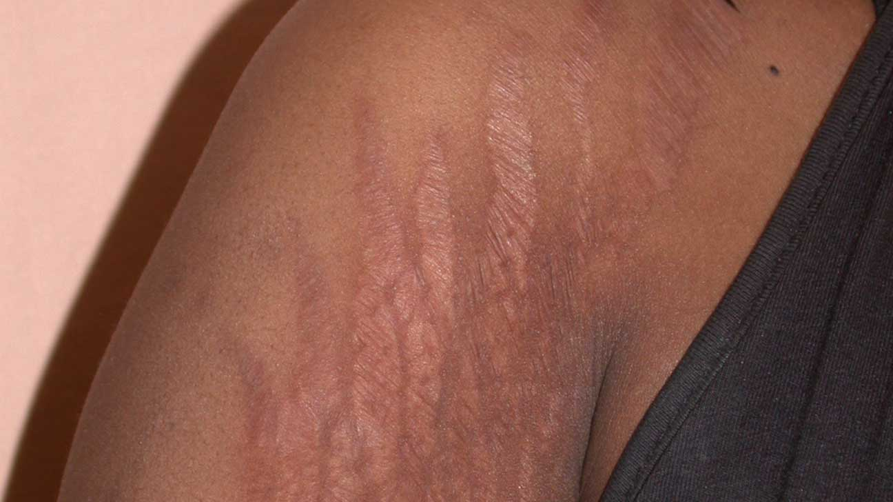 Stretch Marks Causes Diagnosis And Treatments