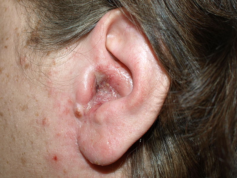 Swollen Lymph Nodes: 21 Causes, Photos, & Treatments