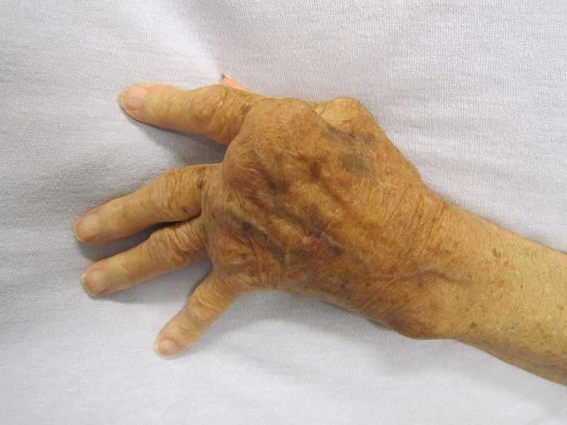 Swollen Lymph Nodes Groin Women Previous Next