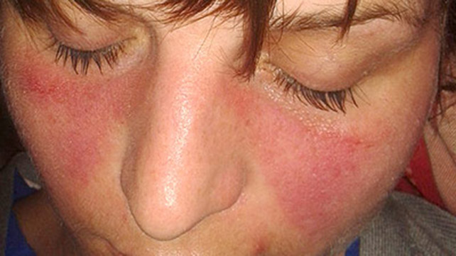 Facial pain with lupus