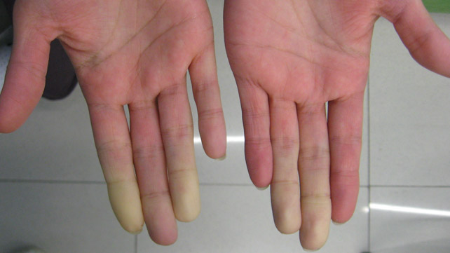 Systemic lupus erythematosus causes symptoms and treatment 4 raynaud syndrome sciox Image collections