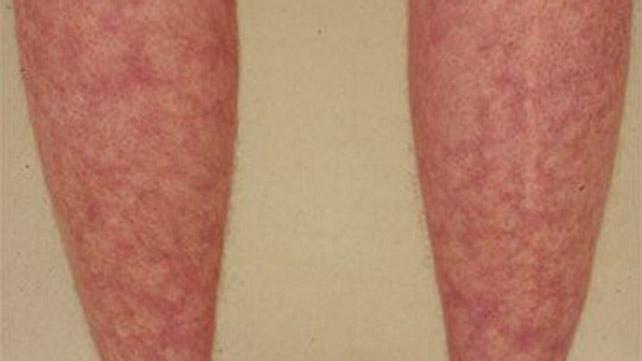 systemic lupus erythematosus: causes, symptoms, and treatment, Skeleton