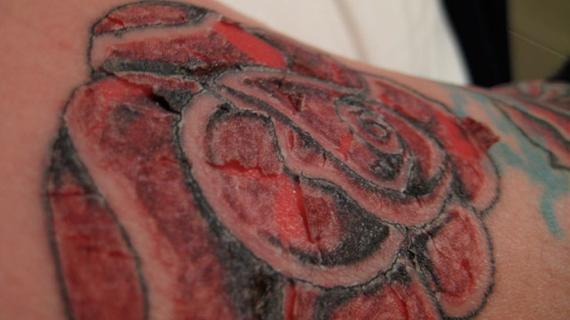 Tattoo infection symptoms and treatment for Allergic reaction to tattoo ink treatment