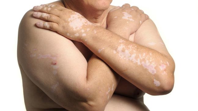 http://www.infoduniakesehatan.com/2016/11/vitiligo-penyebab-gejala-dan-pengobatan.html
