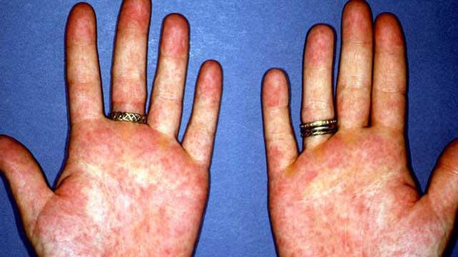 Diabetes skin rash photos - zko.pzrxi.mobi