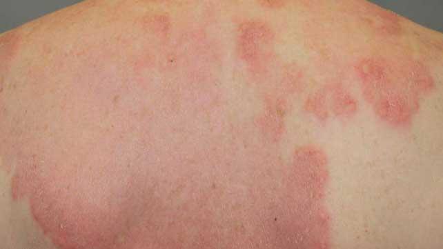 What is rheumatoid arthritis rash? - Edmonton First Aid