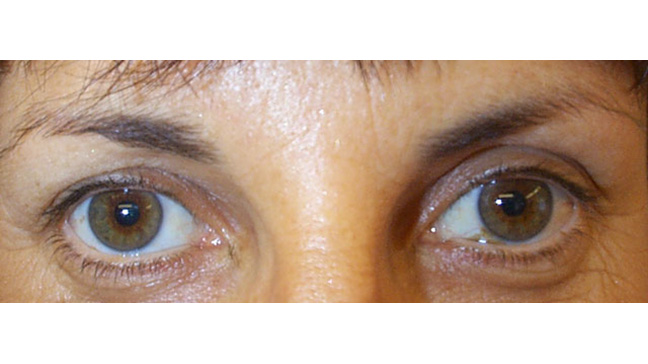 Eyebrow Droop After Botox - Lifestyle Wanita