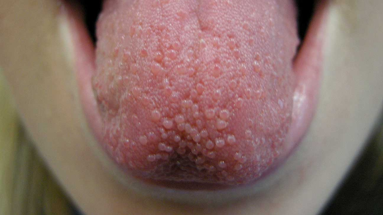 Image result for tongue inflammation