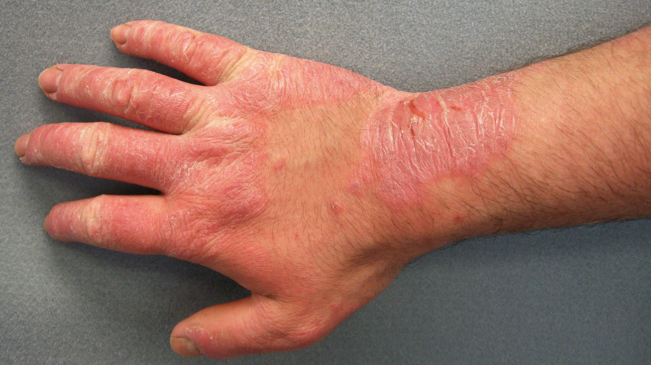 Irritation on hands and other parts of the body. Causes of appearance