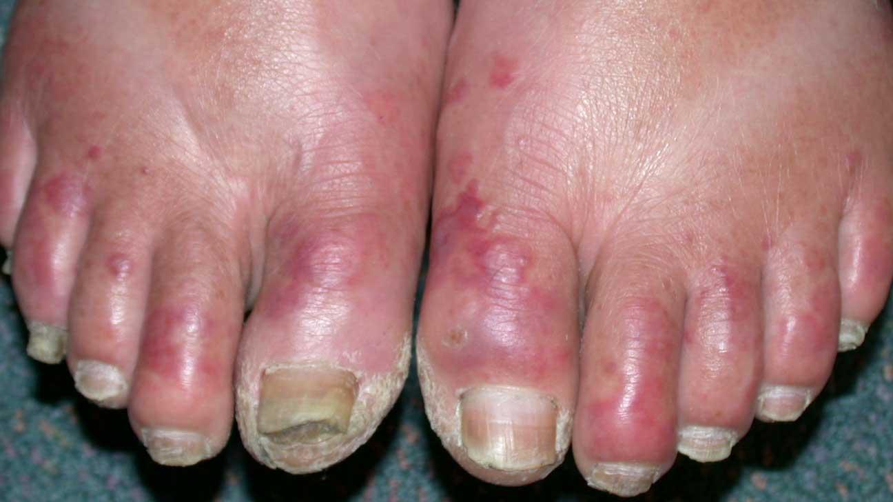chilblains toes的圖片搜尋結果