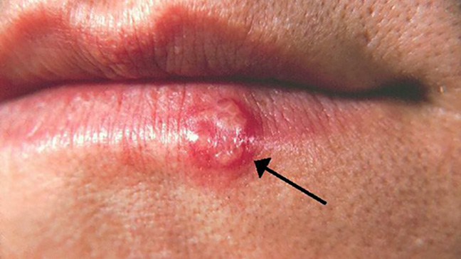 Cold Sore Vs Pimple Symptoms And Treatment