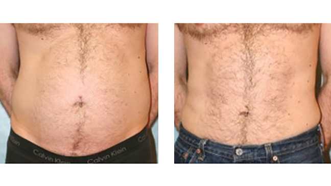 Liposuction: Cost, Side Effects, Results, Pictures