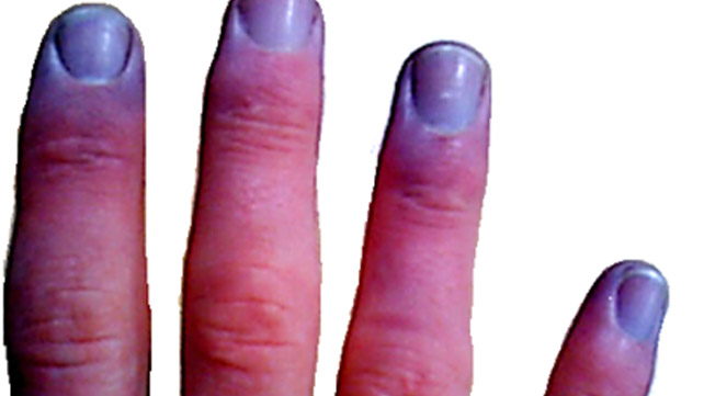 Blueness in the thumb muscle