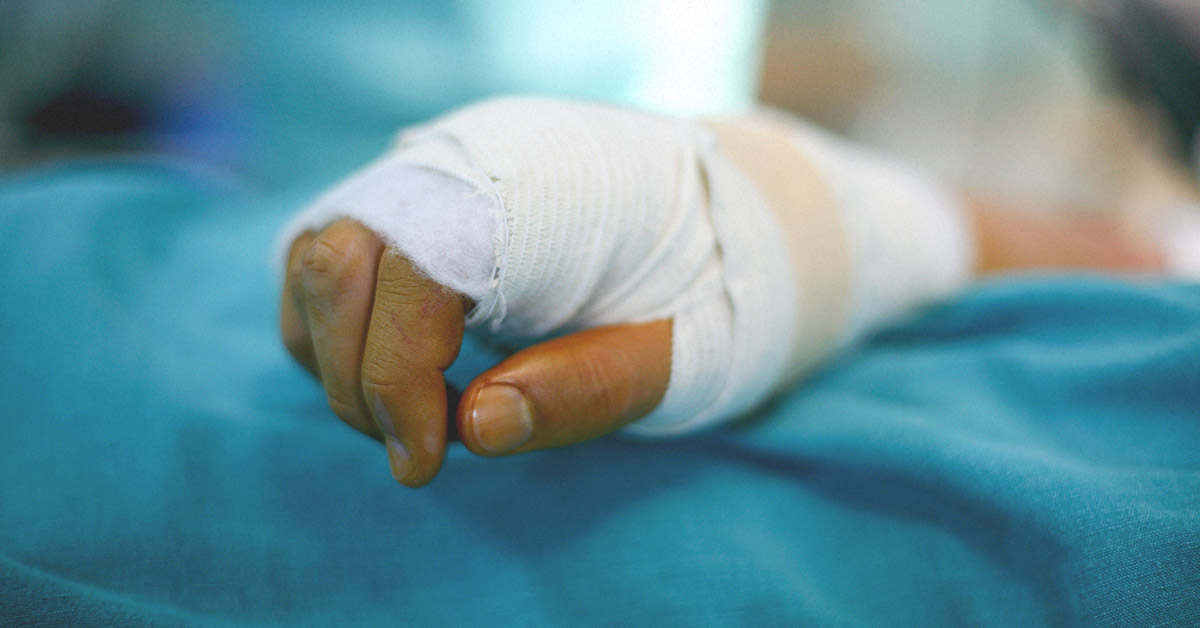 Degloving: Images, Types, Treatment, and Complications