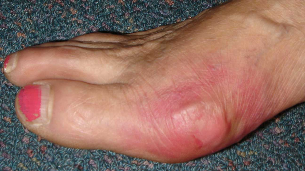 Bone Arthritis Does Arthritis Cause Itchy Skintreatment for