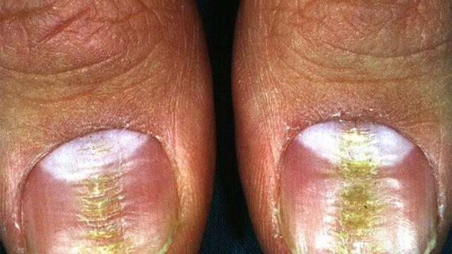Ridged thumb nails