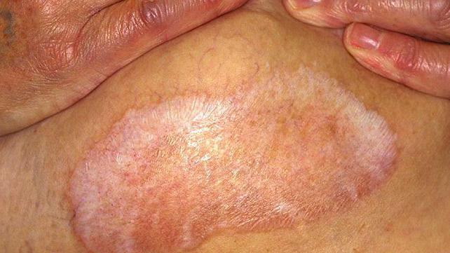 Anus redness lichen sclerosus
