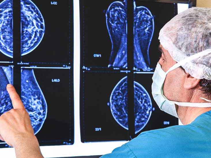Guide to Mammogram Images