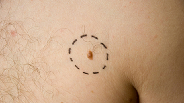 pictures of melanoma, Human Body