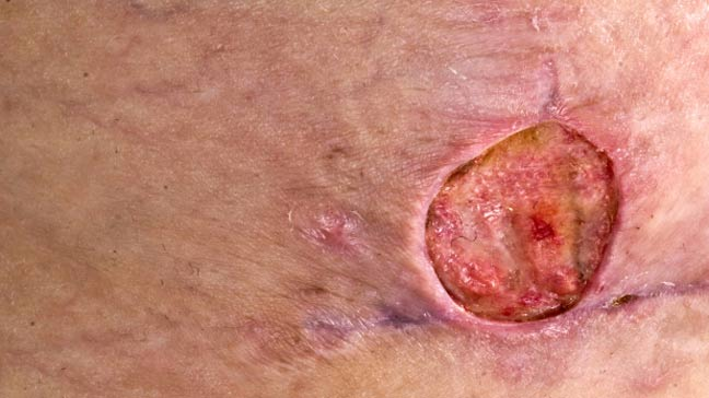 Mrsa Staph Infection Pictures Symptoms Treatment And Prevention