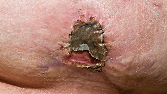 Staph infections pictures