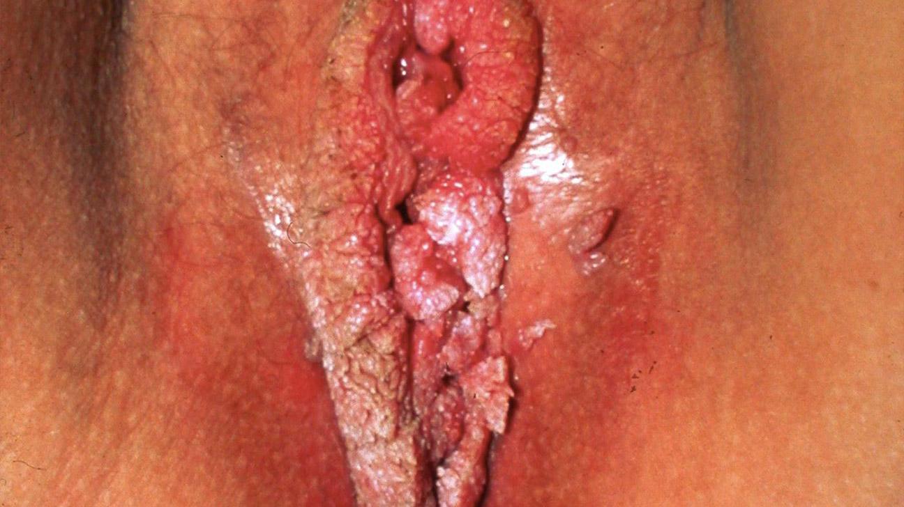 ulcer-on-vagina