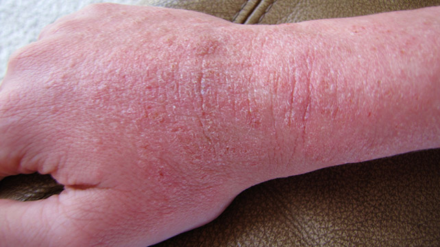 Psoriasis Vs Eczema What Is The Difference