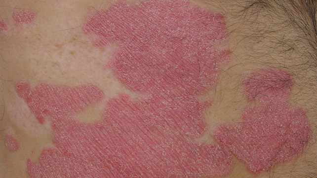 Dry red flaky skin on face