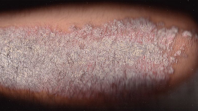 how to tell the difference between eczema and skin cancer