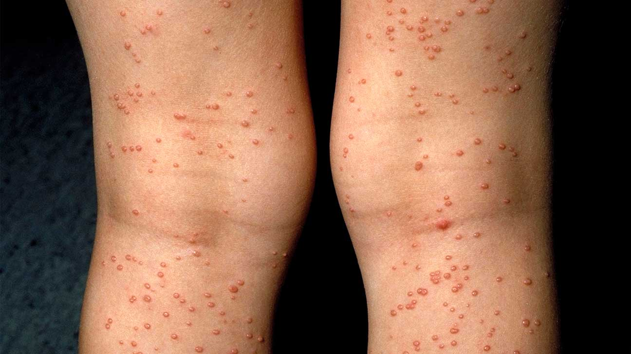 Rashes and Skin Conditions Associated with HIV and AIDS: Symptoms and Treatments
