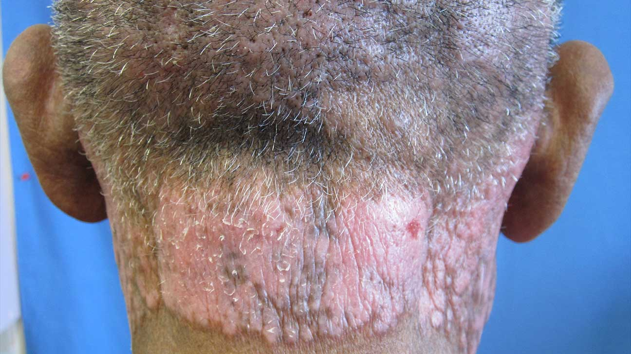 Rashes and Skin Conditions Associated with HIV and AIDS