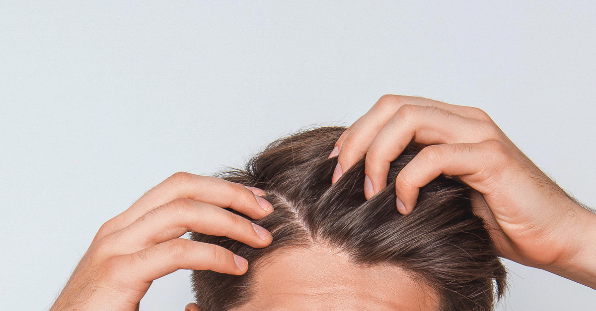 Scabs and Sores on Scalp: Treatment, Causes, and Remedies