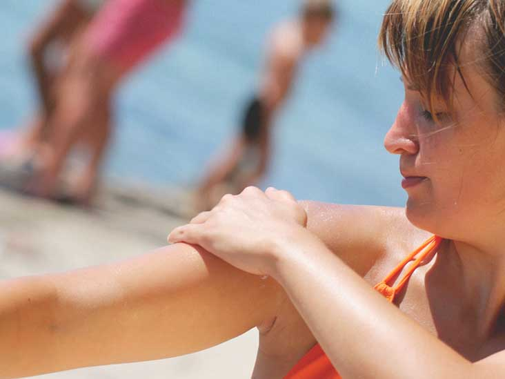 What You Should Know About Sunburn Blisters