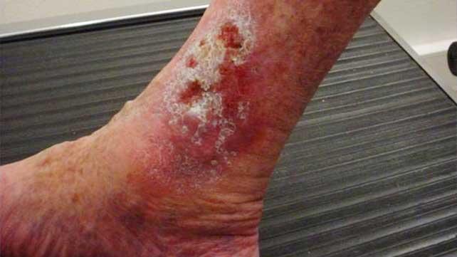 venous skin ulcer