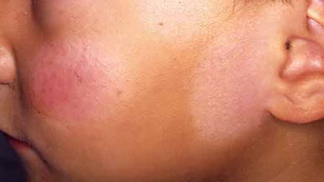 black singles in sunspot Here's 10 things no one ever tells you about the skin care concern so many face how you get them and how to prevent them  dark spots don't have one single cause, .