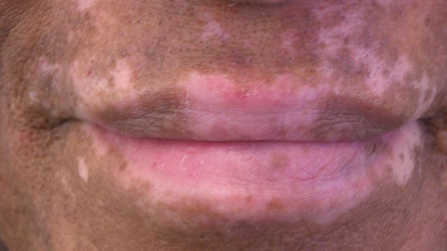 White Spots On Face What S Causing It