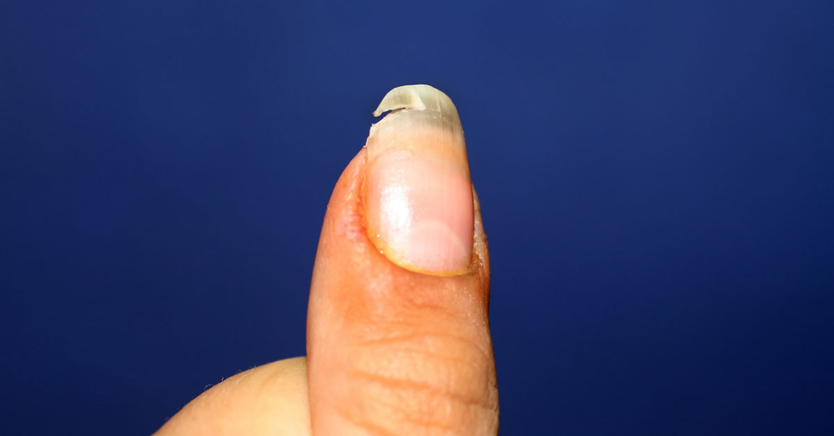 Split Nail Causes Treatment And Prevention