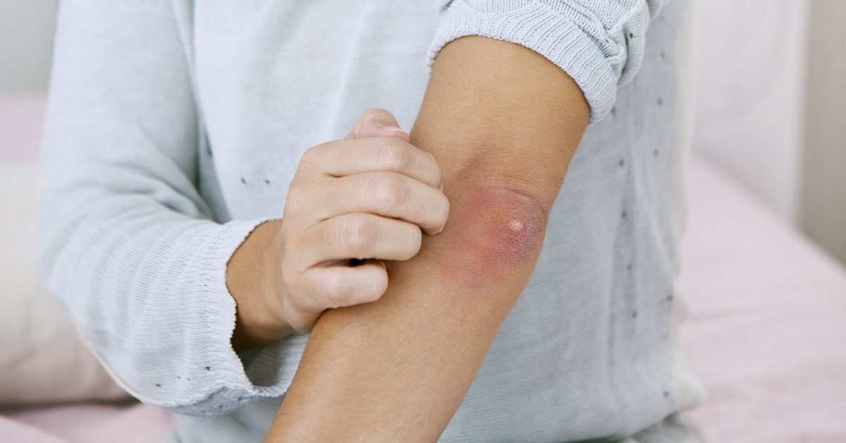Pimple on Your Elbow: Main Causes and Treatments