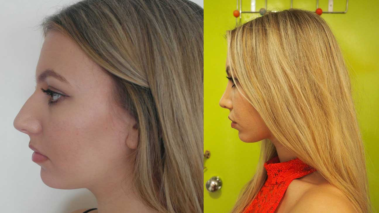 nose job, rhinoplasty, plastic surgery