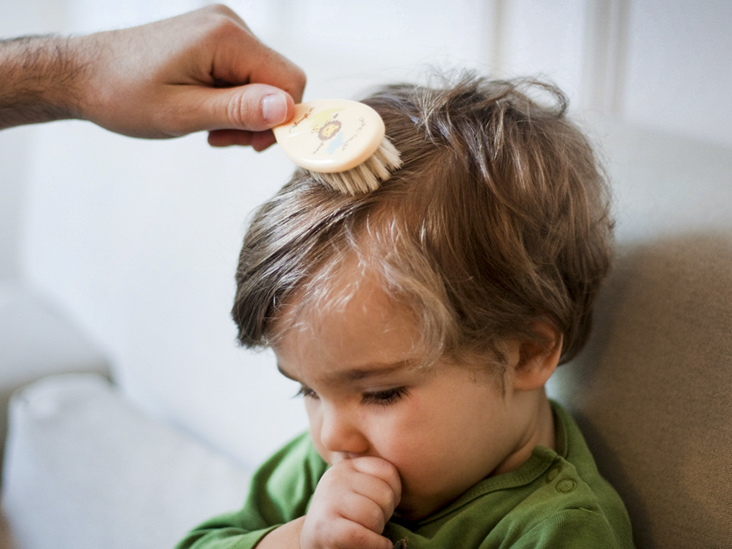 Scalp Yeast Infection: Causes, Symptoms, and Treatments