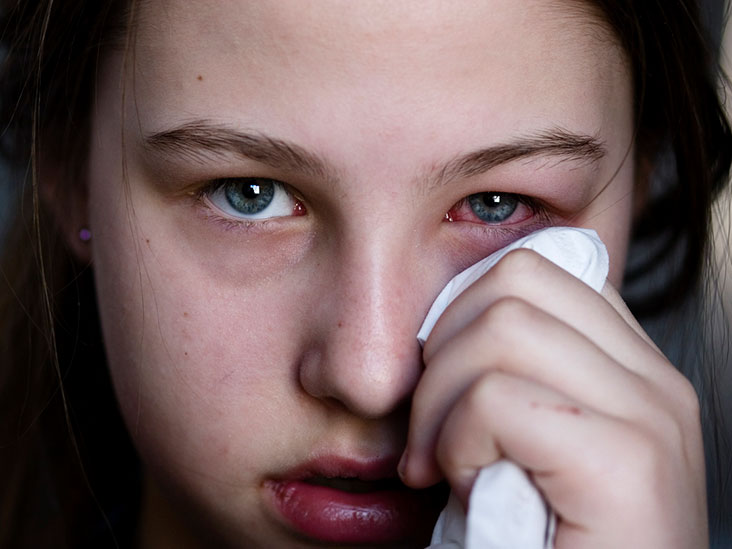 what eye drops treats pink eye