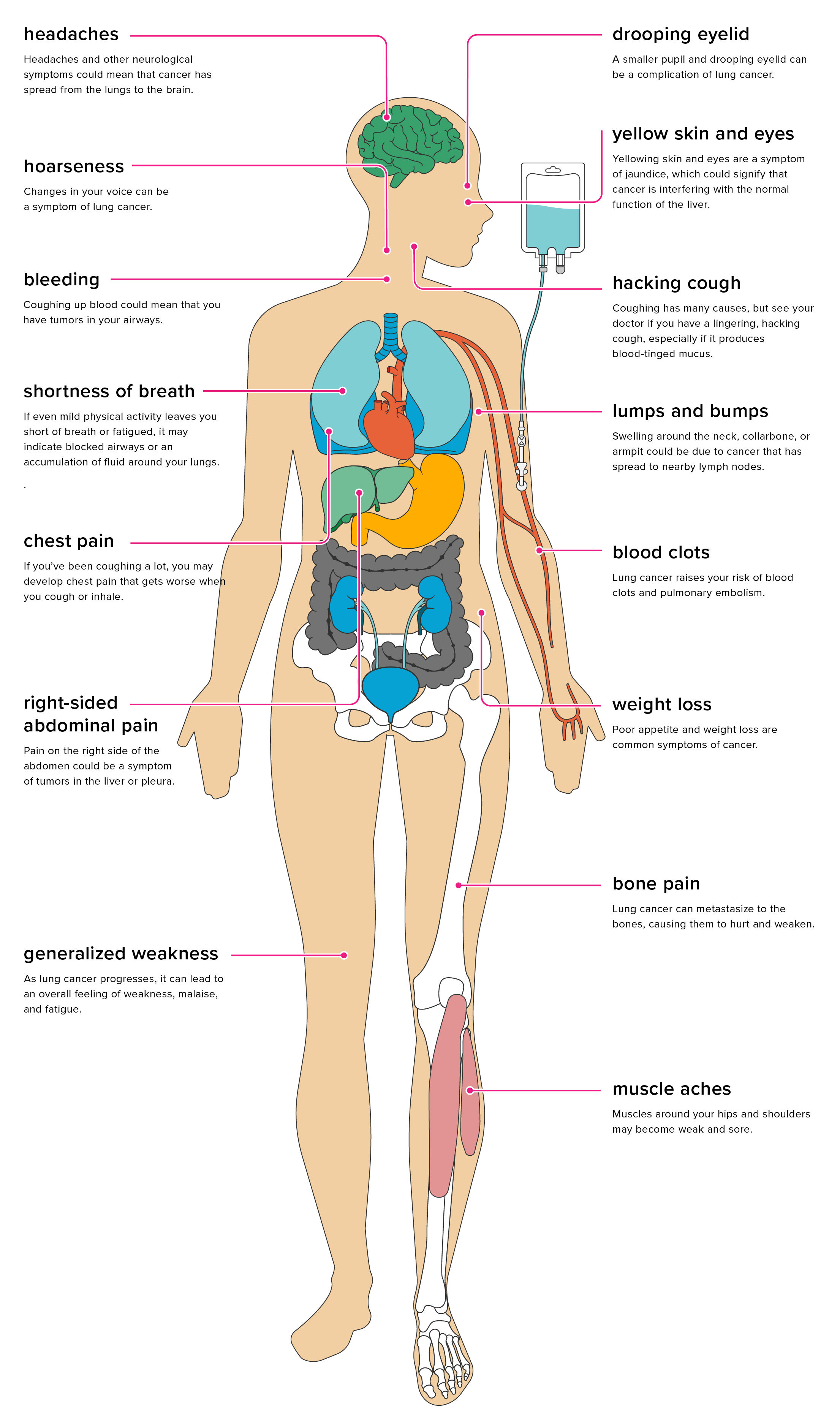 Effects of Lung Cancer on the Body