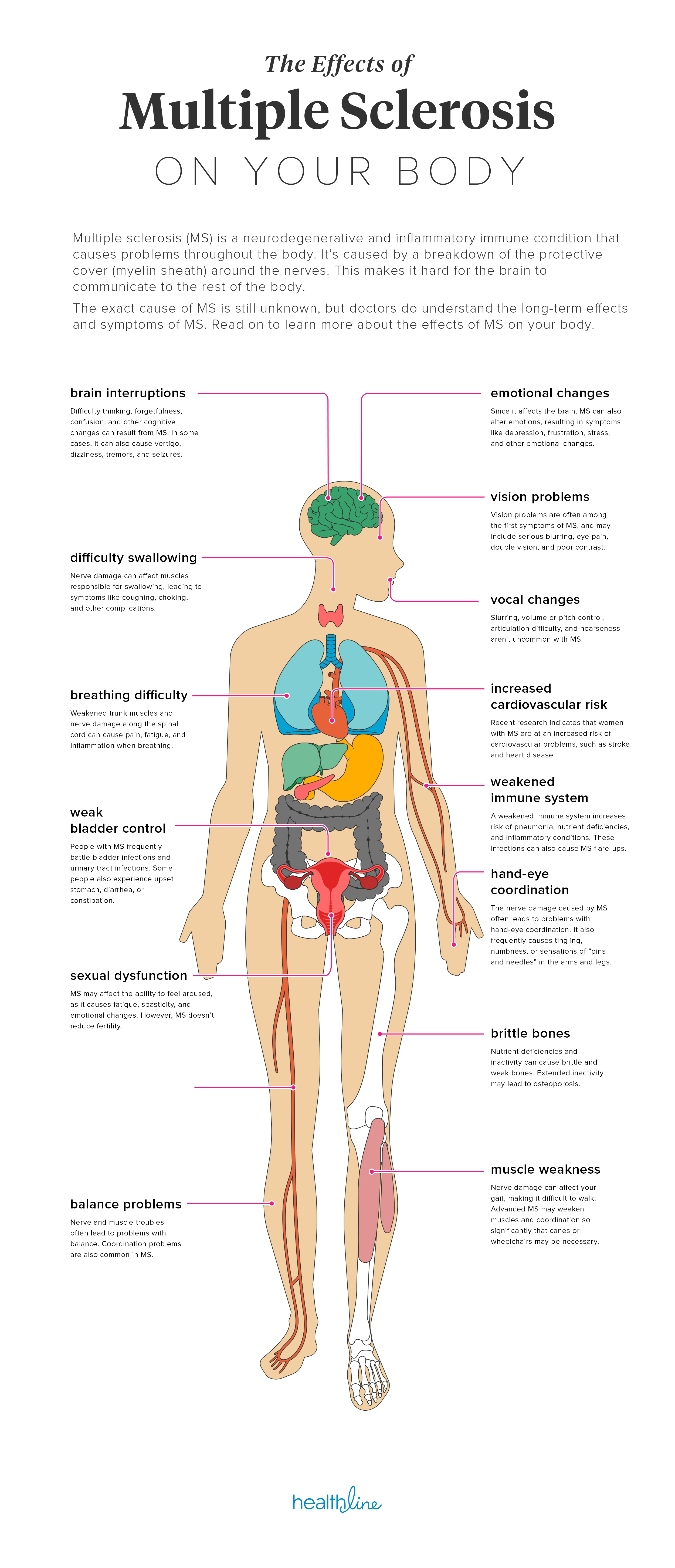 The Effects of Multiple Sclerosis on Your Body