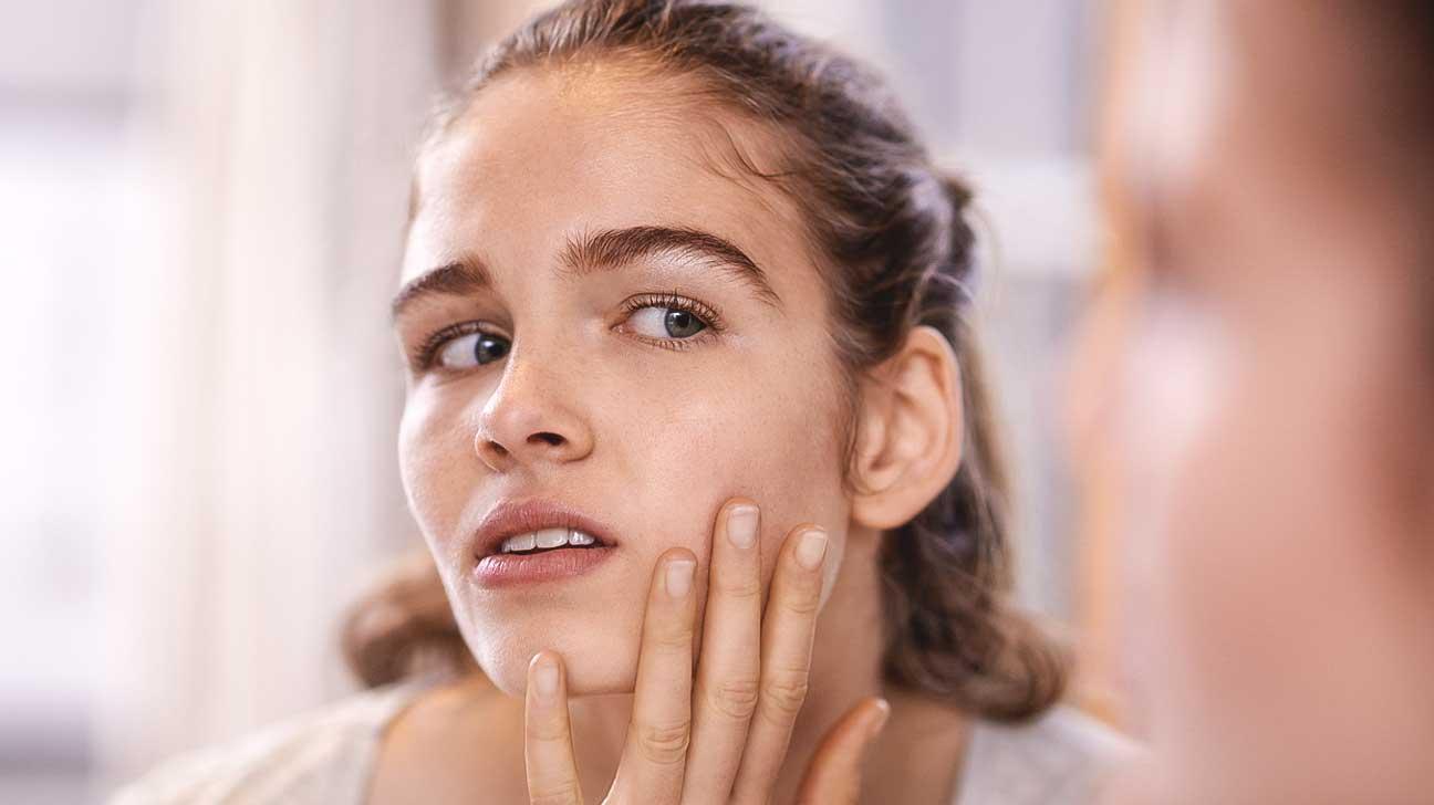 acne probiotics