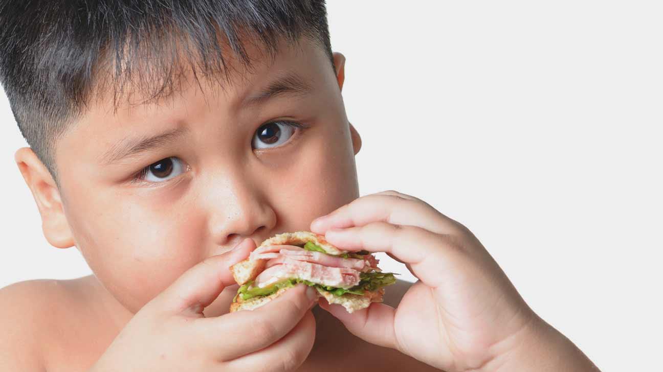 Obesity: Western Diets to Blame?