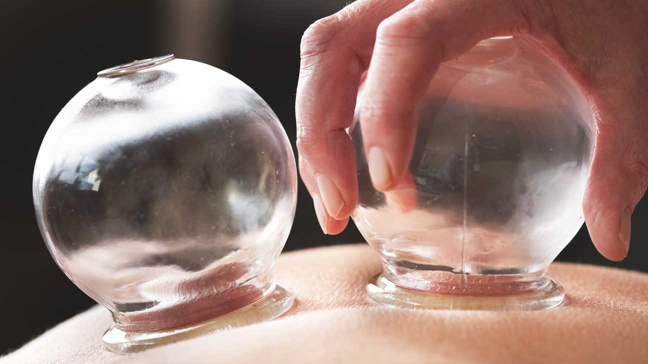 Cupping At Olympics Does It Work